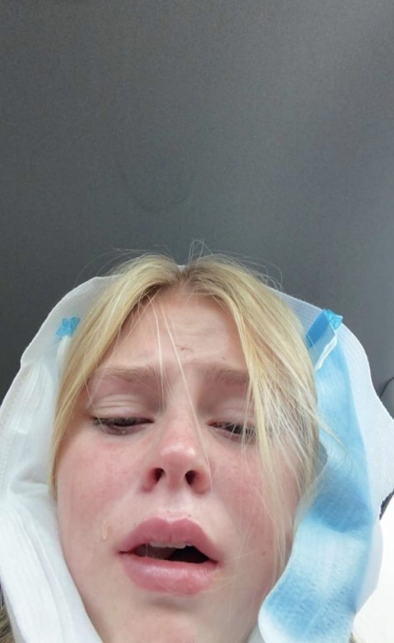 Wisdom+teeth+removal+isn%27t+always+as+glamorous+as+I+make+it+look.+
